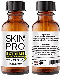 skin pro extreme mole removal