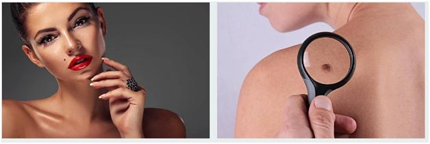 types of skin moles