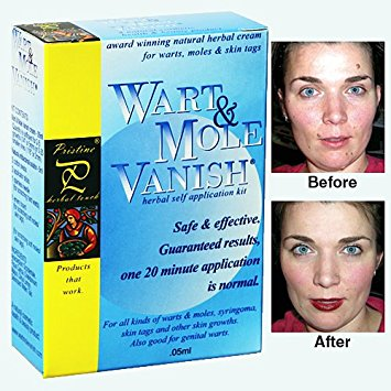 wart mole vanish review