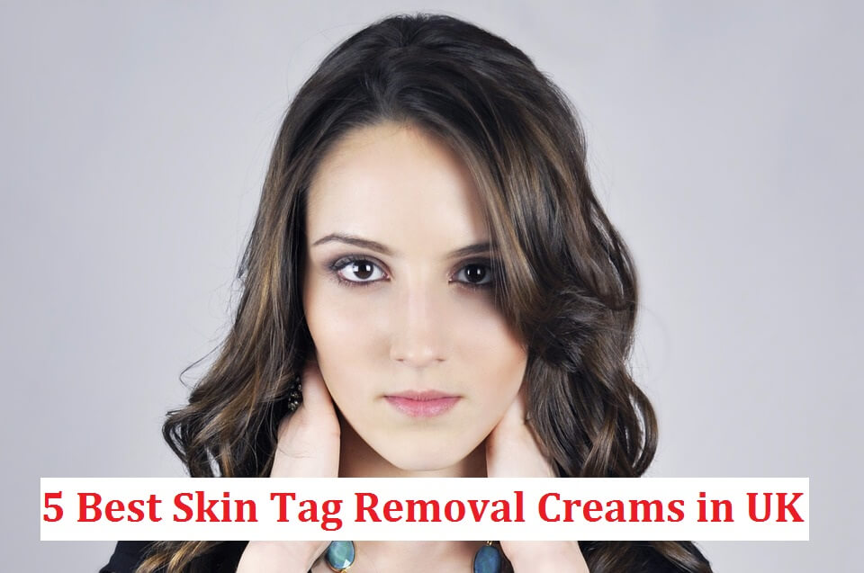 skin tag removal cream uk