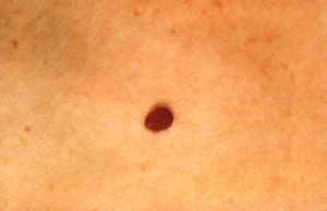 skin red moles