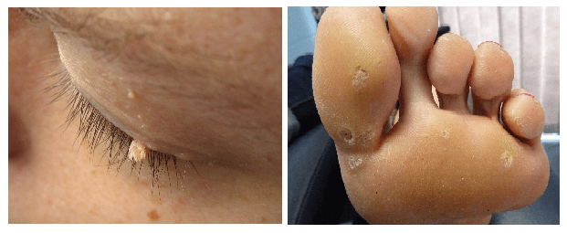 skin tags vs warts