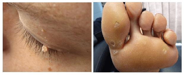 skin tags vs warts