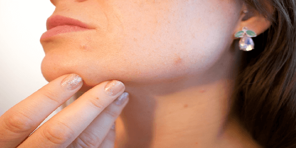 acv mole removal problems