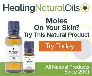 H-Moles Formula Mole Removal