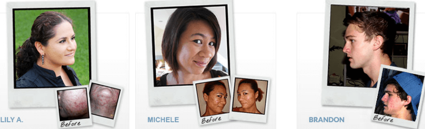 exposed skin care before and after picture