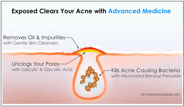 how exposed skin care works