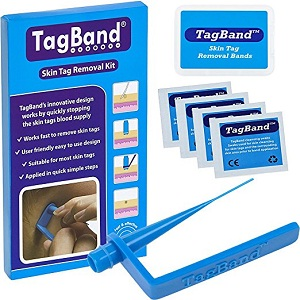 TagBand Mole removal device
