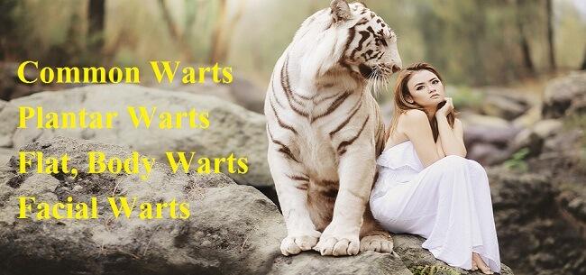 h warts formula review