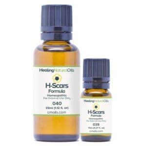 h scars formula