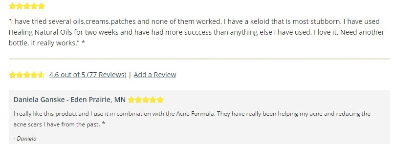 h scars formula customer reviews