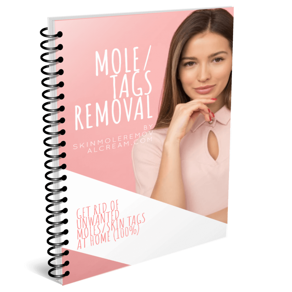 remove moles and tags ebook